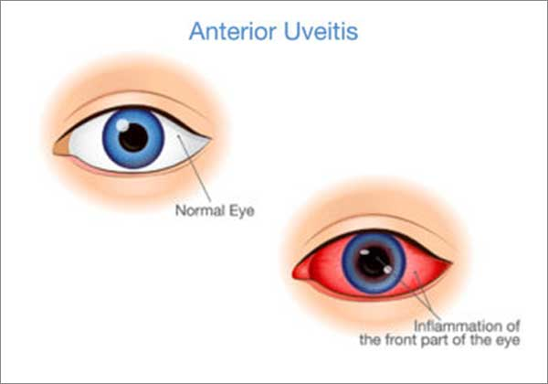 uveitis treatment tamilnadu